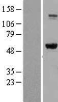 NBL1-11987 - IMPDH2 Lysate