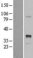 NBL1-11996 - INHBE Lysate