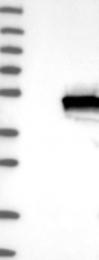 NBP1-89361 - INPP5A / 5PTase