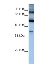 NBP1-54719 - INPP5B / 5PTase 2