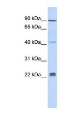 NBP1-59687 - INSIG2