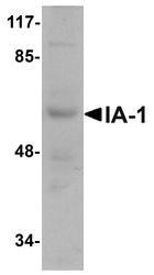 NBP1-76307 - INSM1 / IA1