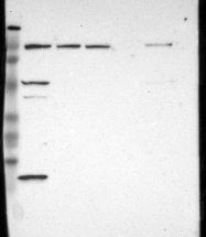 NBP1-85302 - INTS6 / DDX26