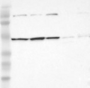 NBP1-88029 - INTS6 / DDX26