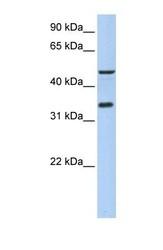 NBP1-55367 - IPCEF1 / PIP3-E