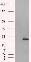 NBP1-47663 - Aurora kinase C