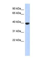 NBP1-54994 - Aurora kinase C
