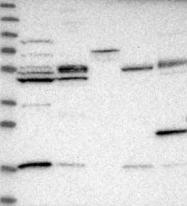 NBP1-86712 - IPPK