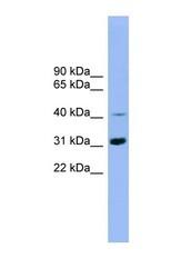 NBP1-56941 - IQCD
