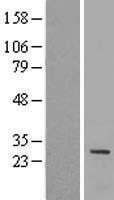 NBL1-12021 - IQCF1 Lysate