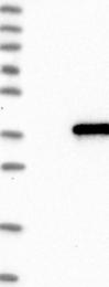 NBP1-83486 - IQCK