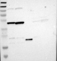 NBP1-87877 - MRVI1 / IRAG