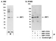 NBP1-78761 - IRF1