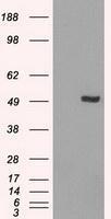 NBP1-47812 - IRF3