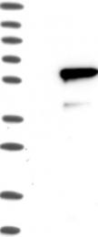 NBP1-82813 - IRF4