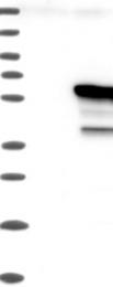 NBP1-82814 - IRF4