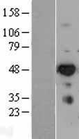 NBL1-12036 - IRF6 Lysate