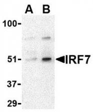 NBP1-77264 - IRF7