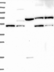 NBP1-83090 - IRX1 / IRXA1