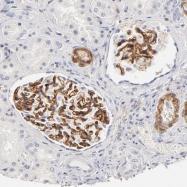 NBP1-86519 - Integrin alpha-8 / ITGA8