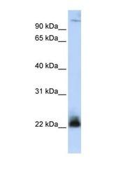 NBP1-59187 - CENP-R / ITGB3BP