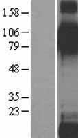 NBL1-12075 - ITGB6 Lysate