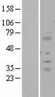 NBL1-12081 - ITM2A Lysate