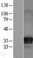 NBL1-12083 - ITM2C Lysate