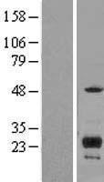 NBL1-12084 - ITM2C Lysate