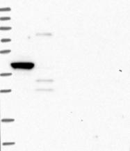 NBP1-81590 - ITPKA / IP3 3-kinase A