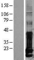 NBL1-11813 - Id1 Lysate