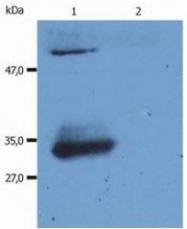 NBP1-44932 - Human IgG