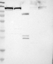 NBP1-87880 - RanBP7 / Importin-7