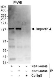 NBP1-46165 - RanBP4 / Importin-4