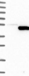 NBP1-87701 - IDO1 / INDO