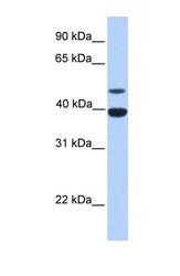 NBP1-58280 - Inhibin alpha / INHA