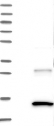 NBP1-87485 - Insulin