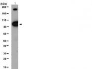 NB120-10991 - CD220 / INSR