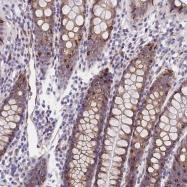 NBP1-84577 - CD49a / ITGA1