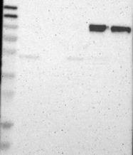 NBP1-88128 - CD18 / ITGB2
