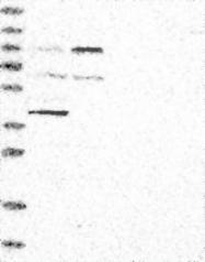 NBP1-87447 - Integrin beta-8 / ITGB8