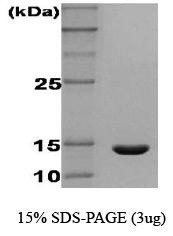 NBC1-18453 - IFNG / Interferon gamma