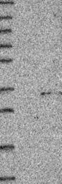 NBP1-88038 - ACRV1