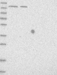 NBP1-87698 - Isoleucyl-tRNA synthetase / IARS