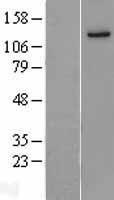 NBL1-12093 - JAK1 Lysate