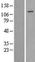 NBL1-12094 - JAK3 Lysate