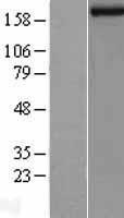 NBL1-12099 - JARID1B Lysate