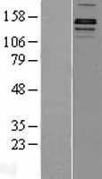 NBL1-12102 - JHDM2A Lysate