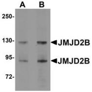 NBP1-76314 - JMJD2B / KDM4B