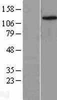 NBL1-12104 - JMJD2C Lysate